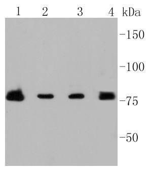 PI 3 Kinase p85 beta Recombinant Rabbit monoclonal Antibody IgG