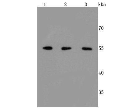 ERp57 Recombinant Rabbit monoclonal Antibody IgG