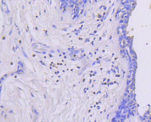 Phospho-MEK1 (S218/S222) Recombinant Rabbit monoclonal Antibody IgG