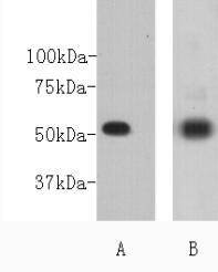 CD271 Rabbit polyclonal Antibody IgG