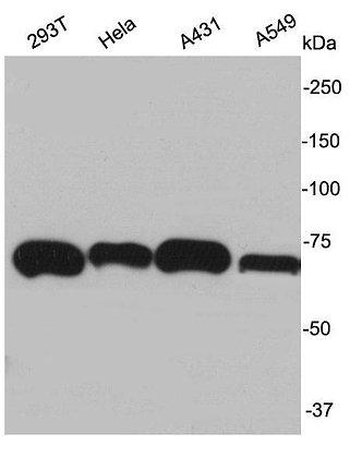 Ku70 Rabbit polyclonal Antibody IgG
