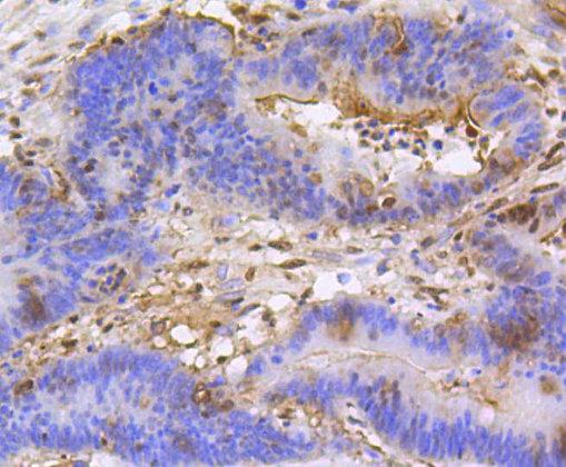 Histone H3 (mono+di+methyl K79) Recombinant Rabbit monoclonal Antibody IgG