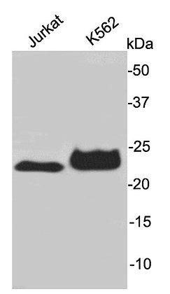AK6 Rabbit polyclonal Antibody IgG