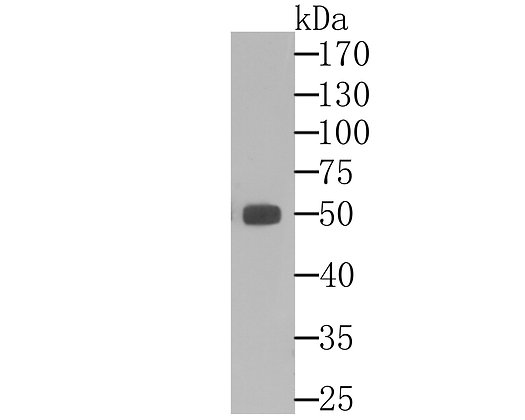 ALDH1A1 Mouse monoclonal Antibody IgG1