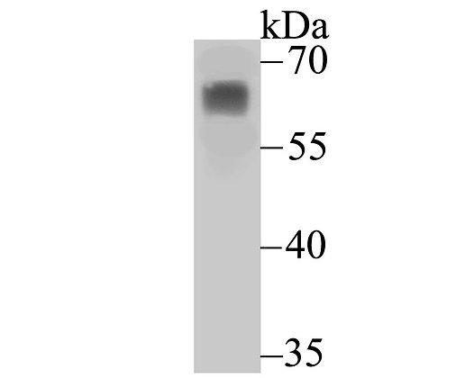PHF10 Rabbit polyclonal Antibody IgG