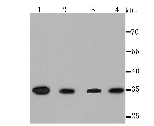 Thymidylate Synthase Recombinant Rabbit monoclonal Antibody IgG