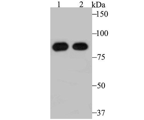 RRM1 Recombinant Rabbit monoclonal Antibody IgG
