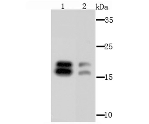 NM23 Rabbit polyclonal Antibody IgG