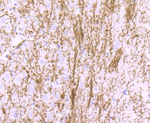 Myelin Basic Protein Recombinant Rabbit monoclonal Antibody IgG