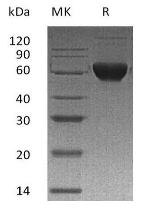 Recombinant Human Activin Receptor 2B/Activin RIIB/ACVR2B (C-Fc-6His)