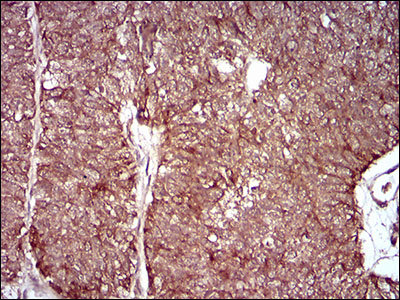 MMEL1 Mouse monoclonal Antibody IgG1