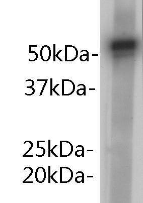 alpha 1-antitrypsin Rabbit polyclonal Antibody IgG