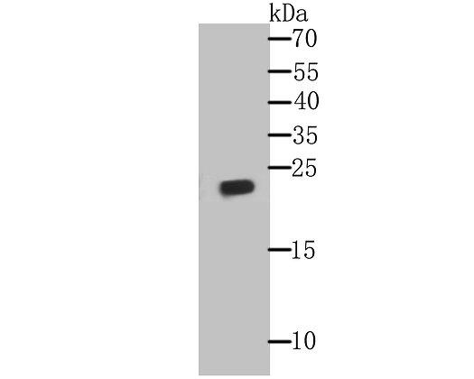 GPX1 Mouse monoclonal Antibody IgG