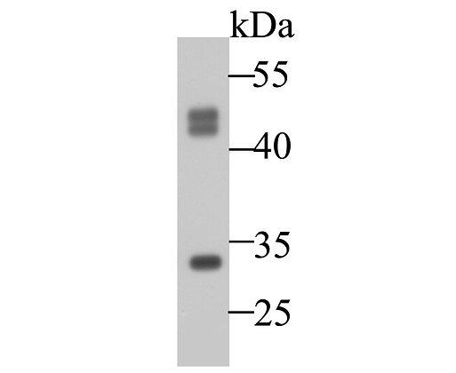 Cathepsin D Mouse monoclonal Antibody IgG1