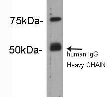 Complement C4 (β chain) Rabbit polyclonal Antibody IgG