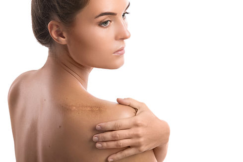 Woman with a scar on her shoulder over w