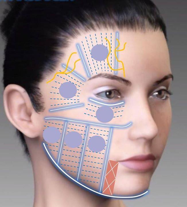 HIFU face & body
