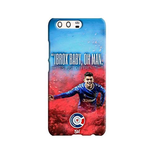 Hagi - Oh Man Huawei Case