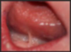 frenotomy, ankyloglossia