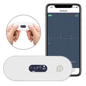 Personal ECG monitor.jpg