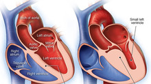 My relative has hypertrophic cardiomyopathy.  Now what?