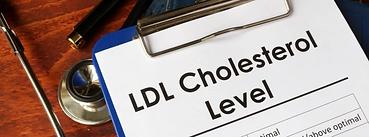 ldl-cholesterol-chart_828x315.webp
