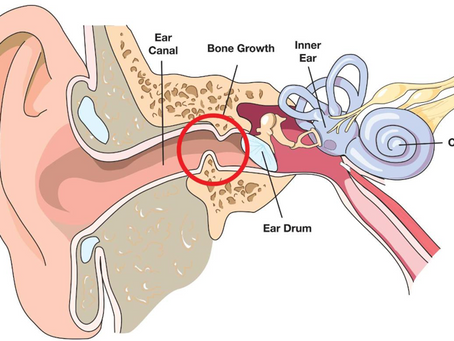Ear Issues Explained: Prevention & Treatment