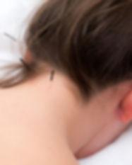 akupunktur-640px-1024x704.jpg