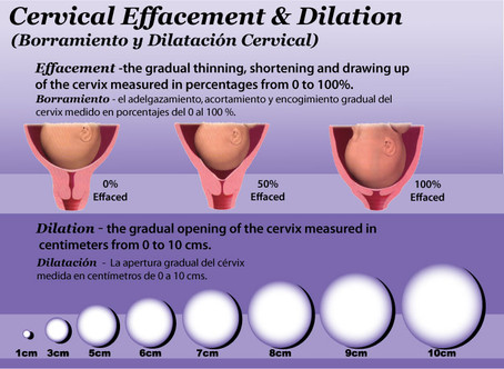 effacement2020dilation20chart20of-3-span