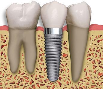 Impianto dentale dente singolo