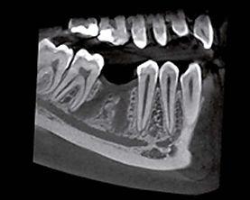 Panoramica 3d Dentalscan TAC dentale impianto dentale