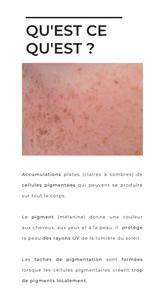 D'où viennent les taches de pigmentation.