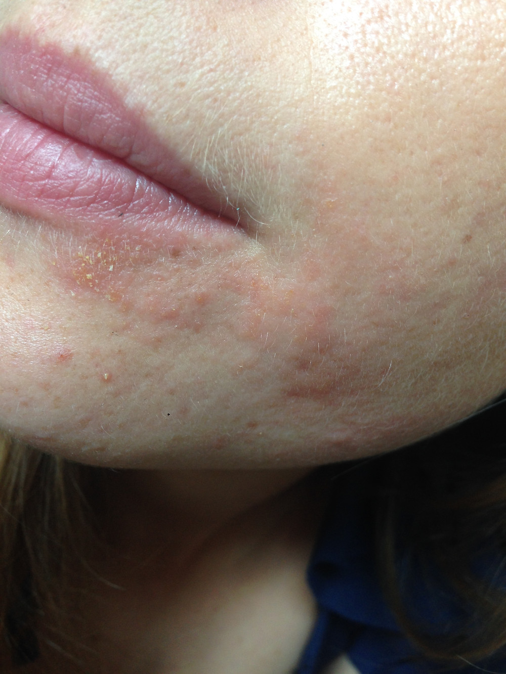 Allergie à la cosmetique conventionnelle