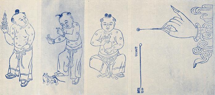 Traditional Chinese Medicine Inoculation islon woolf concierge