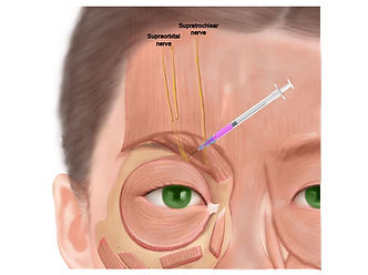 supraorbital-nerve.jpg