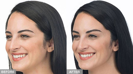 Botox - before and after