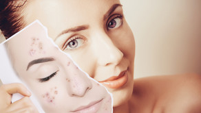 Tratamento químico para manchas na pele (peeling)