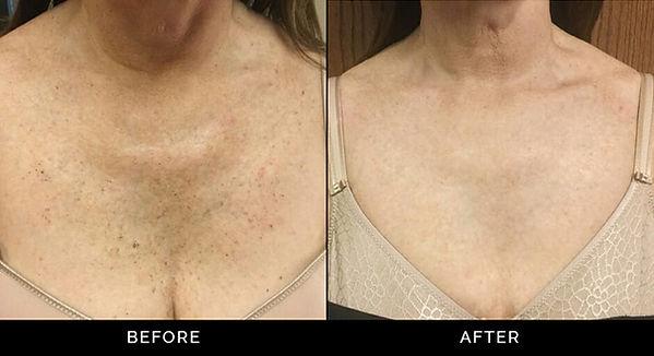 ipl-before-after-kline-dermatology.jpg