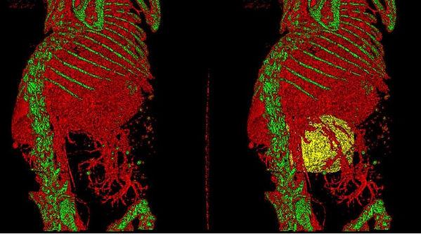 CT - Pancreatic Tumor and vasculature.JP