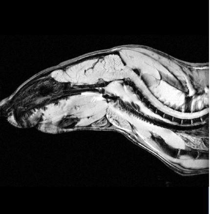 MRI - Brain Cross section.JPG