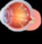 Glaucoma_eye_pressure_fnl.png