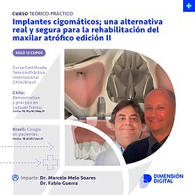 Módulo 1: Implantes cigomáticos; una alternativa real y segura Edición II