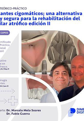 Módulo 2: Implantes cigomáticos; una alternativa real y segura Edición II