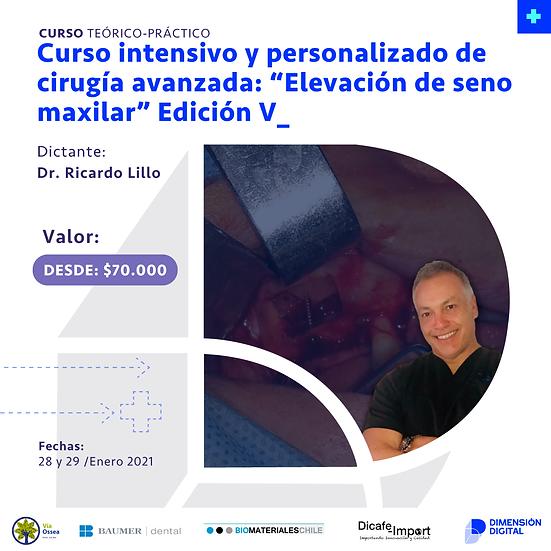 Curso intensivo y personalizado de cirugía avanzada: Elevación de seno maxilar V