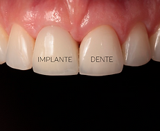 Implantes Curitiba