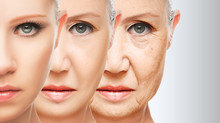Perda dos dentes e envelhecimento facial
