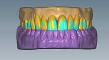 Planejamento Digital: rapidez e precisão na odontologia