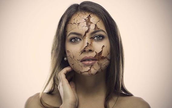Realistic-Cracked-Skin.jpg