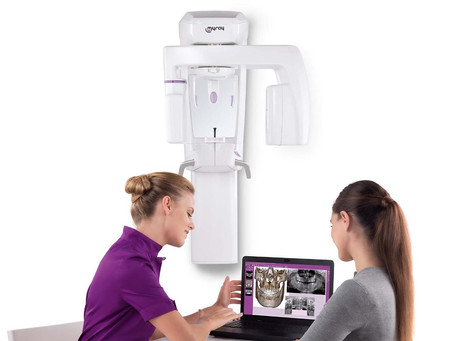 Buyer's Guide for Digital Panoramic X-rays (OPG)