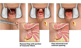 mucosal advancement flap